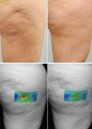 foto prima e dopo cellulite