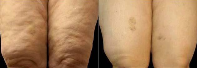 cellulite-ginocchia