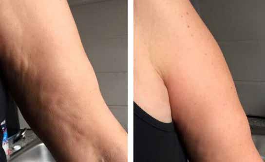 cellulite-braccia